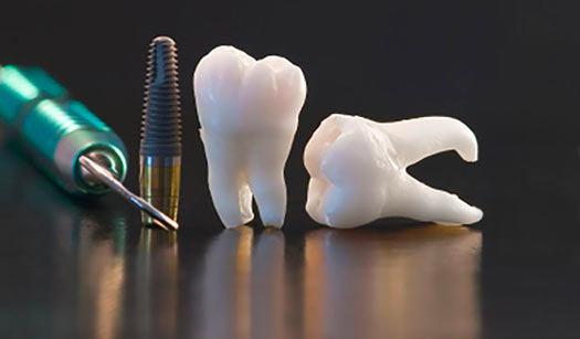 3D printing teeth models for the dental industry. Allow students to learn and patients to be reassured.