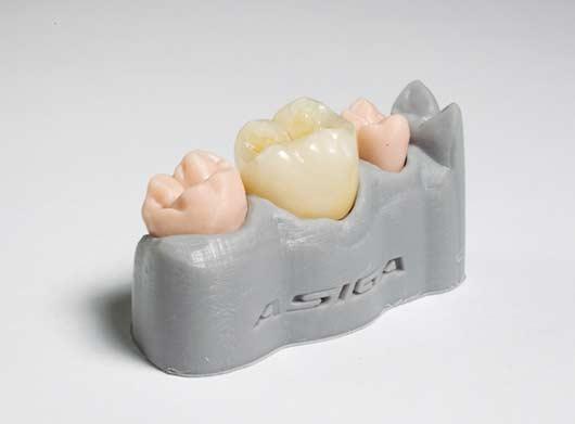 Imprimer en 3D des prothèses dentaires n'est pas encore possible en début d'année 2017.