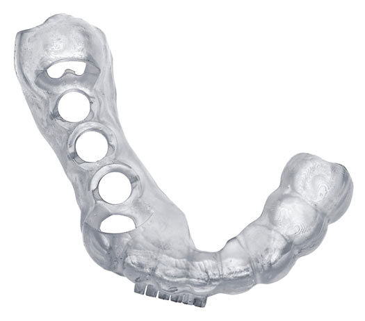3D printing dental surgical guides. 3D printing for the dental industry with SLA/DLP technologies.