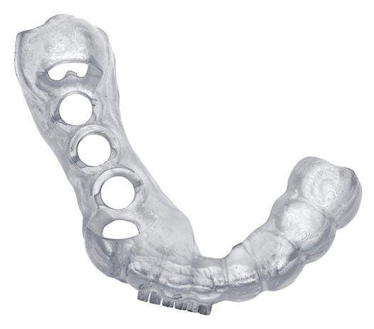Impression 3D de guides chirurgicaux dentaires. Impression 3D rapide et à coût moindre.