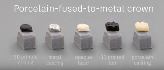 3D printing dental crowns for the dental industry.