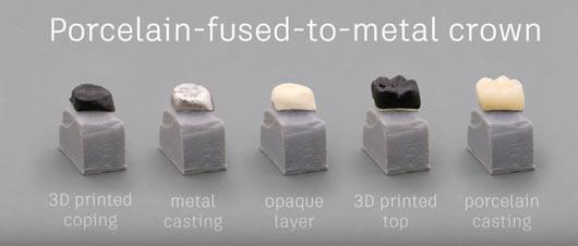 Impression 3D de couronnes dentaires pour la dentisterie digitale. Utilisation combinée de la technique de la cire perdue et de l'impression 3D.