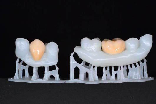 Advantages of 3D printing and 32D scanning for the dental industry. Final result a very natural looking teeth.