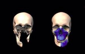 Avantages de l'impression 3D pour les musées et l'archéologie