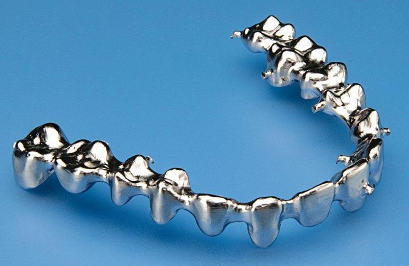 Une prothèse dentaire métal imprimée en 3D.