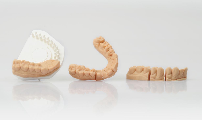 Une impression 3D d'un modèle de machoire et de denture. Crédits: EOS, GmbH.