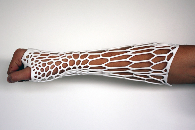 The Cortex exoskeletal cast: a 3D printed cast designed by Jake Evill