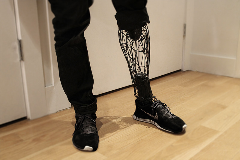 The Exo prosthetic leg, a 3D printed super-lightweight prosthetic leg by William Root.