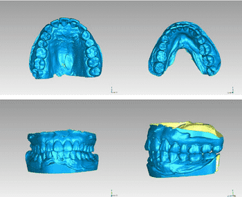 3D scanners can be used to make very accurate 3D models and help make better treatments.