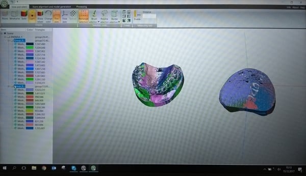 Preparation and alignment of a 3D scan with ScanCenter.