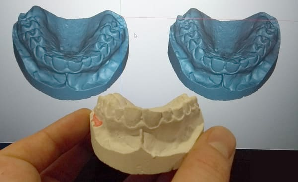 Two different 3D scanning resolutions.