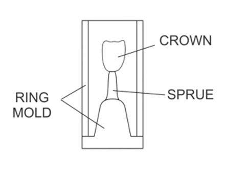 L'impression 3D pour la dentisterie. Schéma d'une couronne entrain d'être réalisée à partir de la technique de la cire perdue et d'un modèle imprimé en 3D.