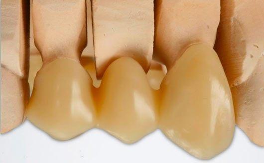 Impression 3D de couronnes dentaires provisoires et implants dentaires provisoires. Possibilité aussi d'imprimer en 3D des facettes dentaires.