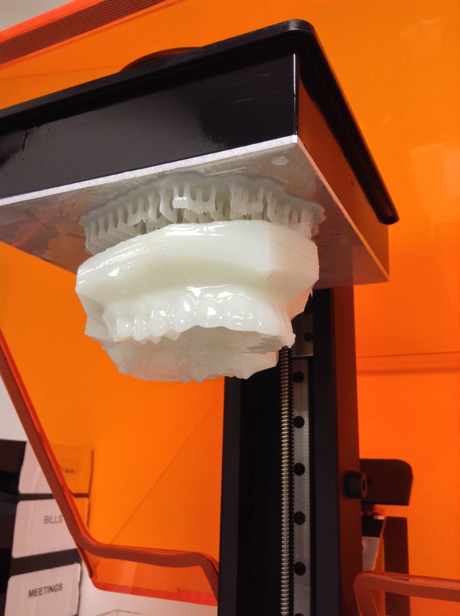 Dental 3D scanning works in tandem with digital production technologies like 3D printing