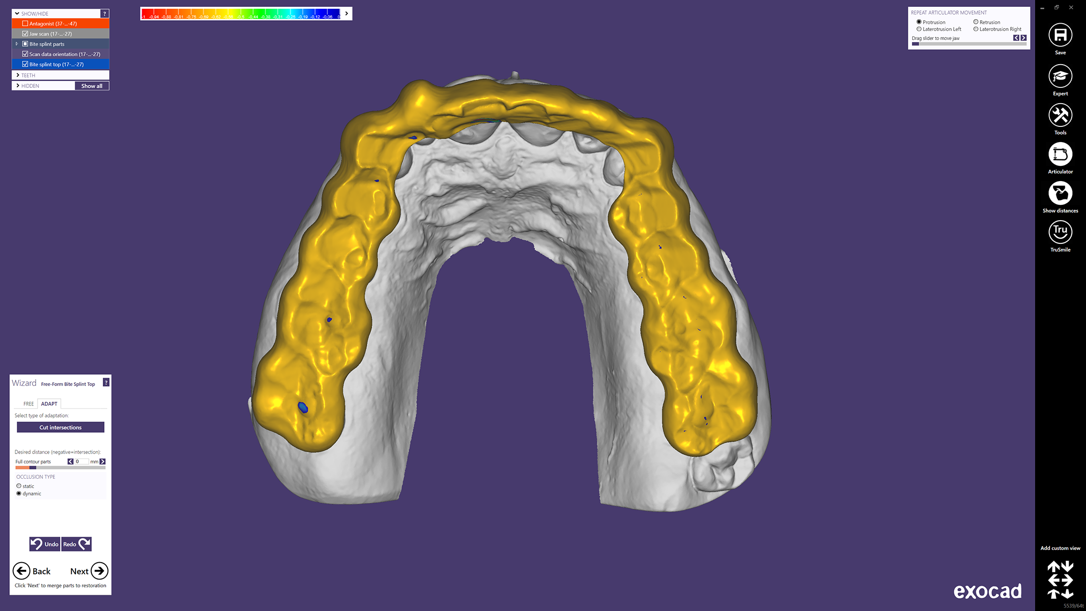 CAD design of a bite splint in exocad software