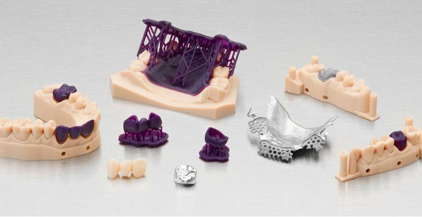 Digital dentistry 3D printing